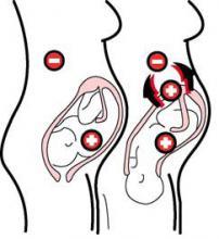 prva-trudnoca-RhD