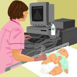 Ultrazvuk kukova kod bebe