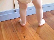 Ravna stopala kod dece